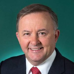 anthony-albanese